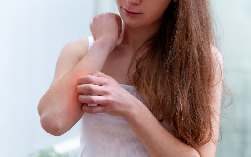 Ayurvedic Treatment for Eczema and Home Remedies photo