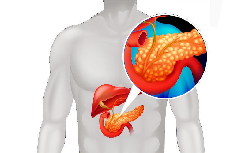 Pancreatitis Ayurveda Treatment and Remedies photo