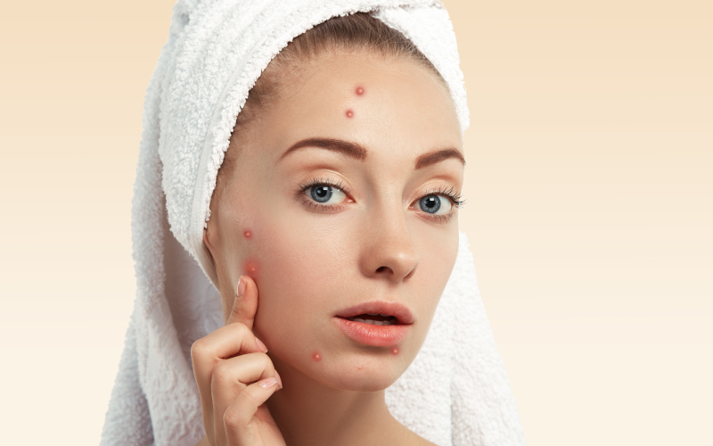How to Treat Acne and Pimples by Kerala Ayurveda photo