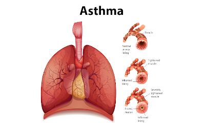 Kerala Ayurveda Treatment for Asthma and Home Remedies