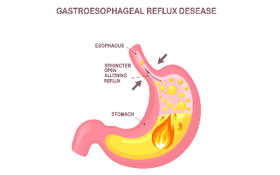 Ayurvedic Ways to Cure GERD or Gastro-Esophageal Reflux Disease