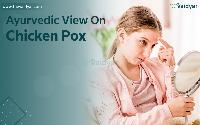 Ayurvedic Approaches And Treatment To Cure Chickenpox photo